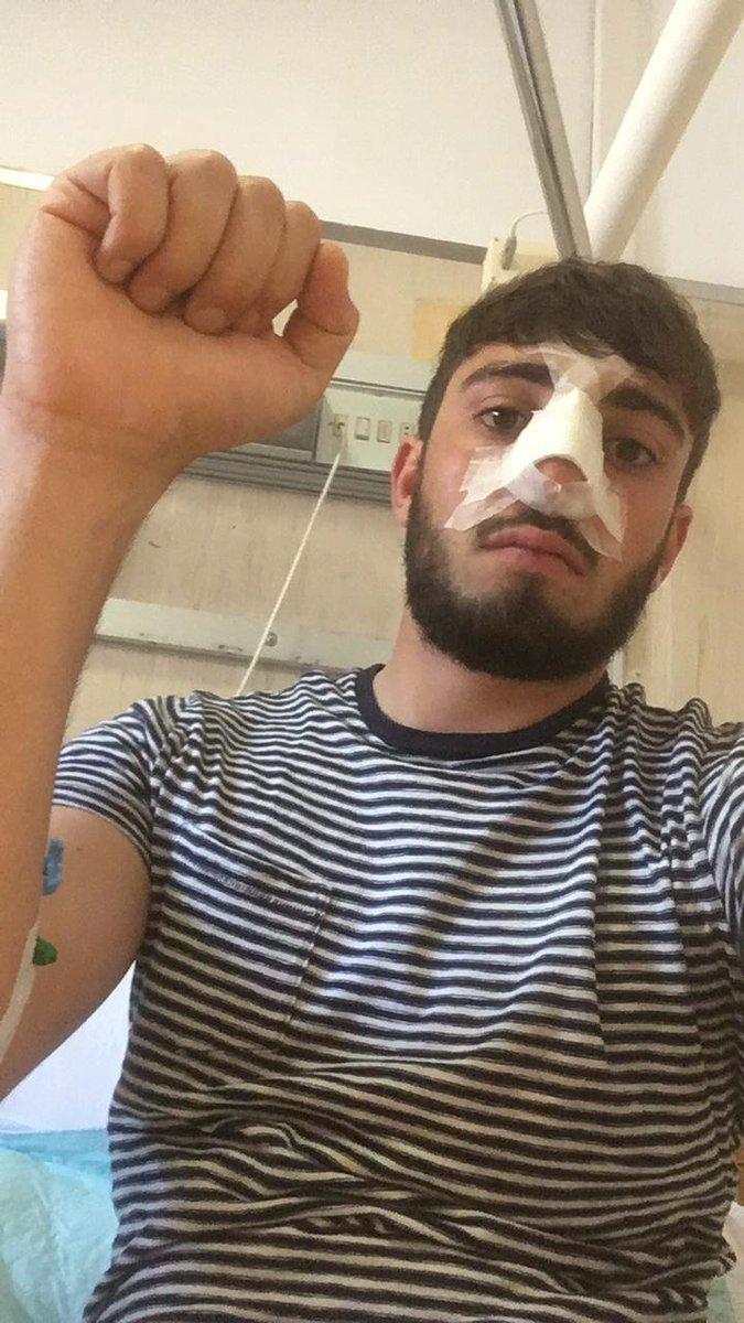 Operato d'urgenza uno dei 4 ventenni aggrediti da un gruppo di fascisti a Trastevere